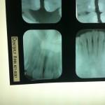 dentist xray