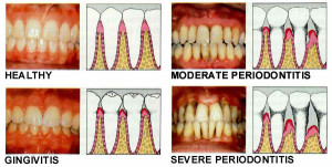 Learn to Spot, Treat & Overcome Periodontal Disease