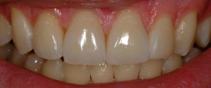 The Risks of Enamel Erosion