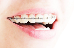 straight-wire-braces-for-straight-teeth