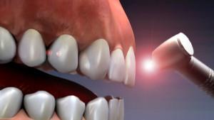 improve-your-dental-experience-thru-laser-surgery