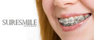the-sleek-fast-suresmile-dental-braces