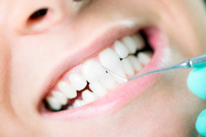 dental-health-benefits-of-professional-dental-cleanings