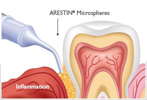 fight-gum-disorder-thru-arestin
