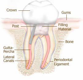 tidbits-of-molar-root-canal