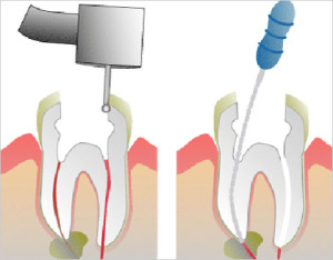 tidbits-of-molar-root-canal2