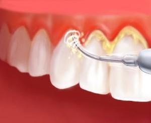 perilous-reactions-of-dental-plaques2