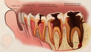 risk-factors-effects-of-tooth-decay