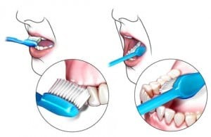 poor-oral-hygiene-effects-to-children2
