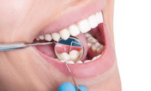 oral-hygiene-you